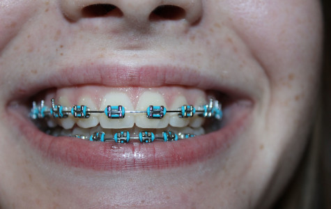 Sophomore Julia LaTrouno has had braces for six months, and still isn't used to the metal plastered on her teeth.